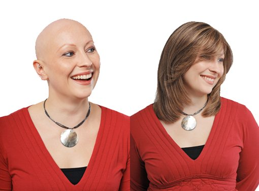 Chemotherapy and Hair Loss: Why does it occur?