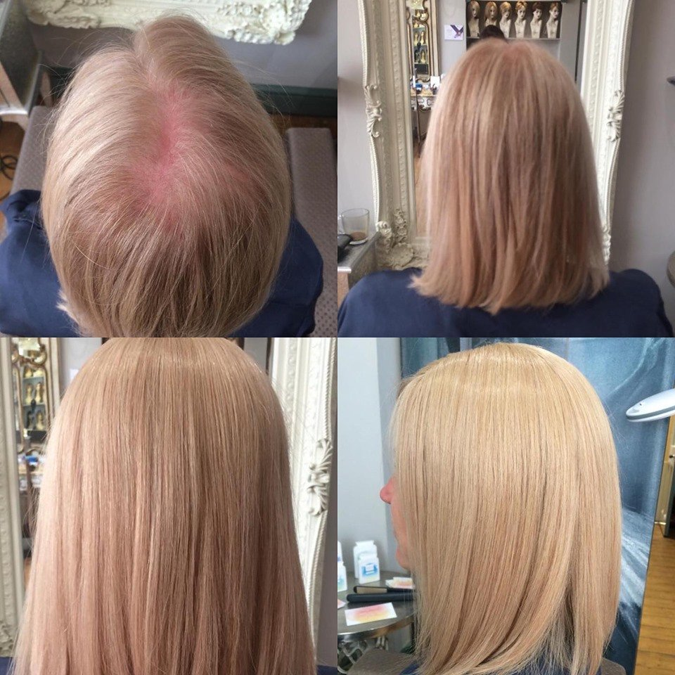 Female Pattern Baldness Is A Common Problem!