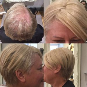 Hair Loss In Women treatments at Simone Thomas trichology clinics in Bournemouth London
