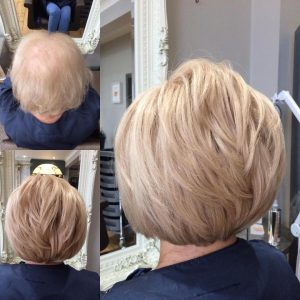 HAIR LOSS SOLUTIONS, Simone Thomas Trichology, Hair Loss Clinic, Westbourne, Bournemouth