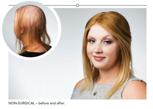Integrated Lace System wigs hair loss solutions Simone Thomas Clinics Bournemouth Westbourne Poole