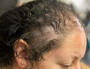 cardiovascular disease and hair loss hair treatments at simone thomas trichology clinics bournemouth dorset london