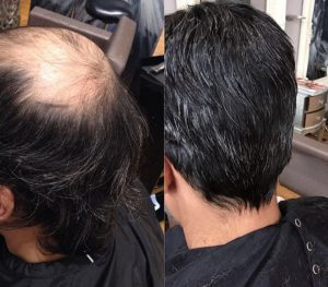 hair loss solutions for men award winning hair loss clinics in Bournemouth