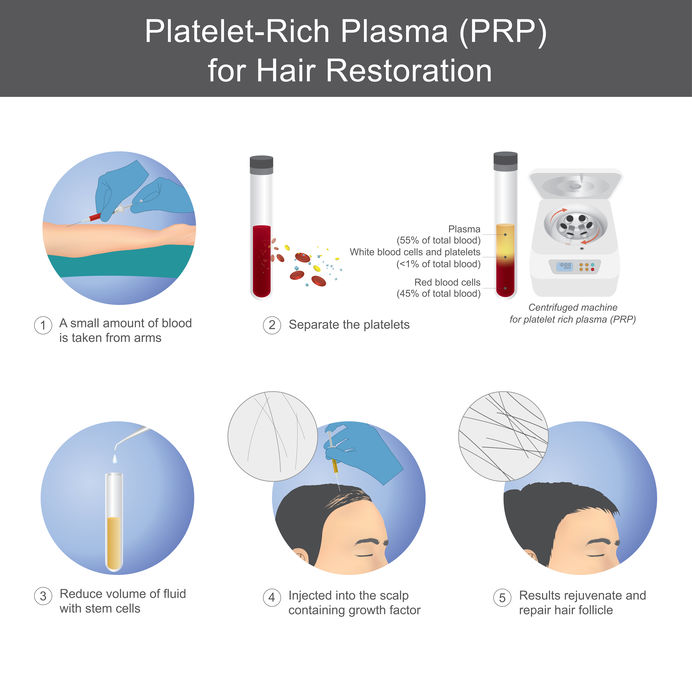 PRP hair loss treatments Bournemouth Trichology Clinic
