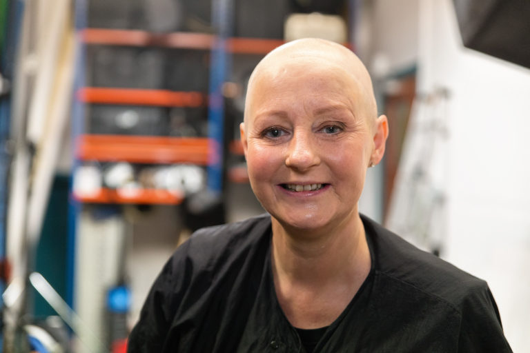 Cancer and Hair Loss