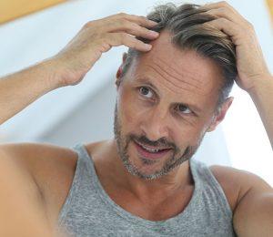 Hair Loss FAQs Simone Thomas Trichology Clinics Dorset