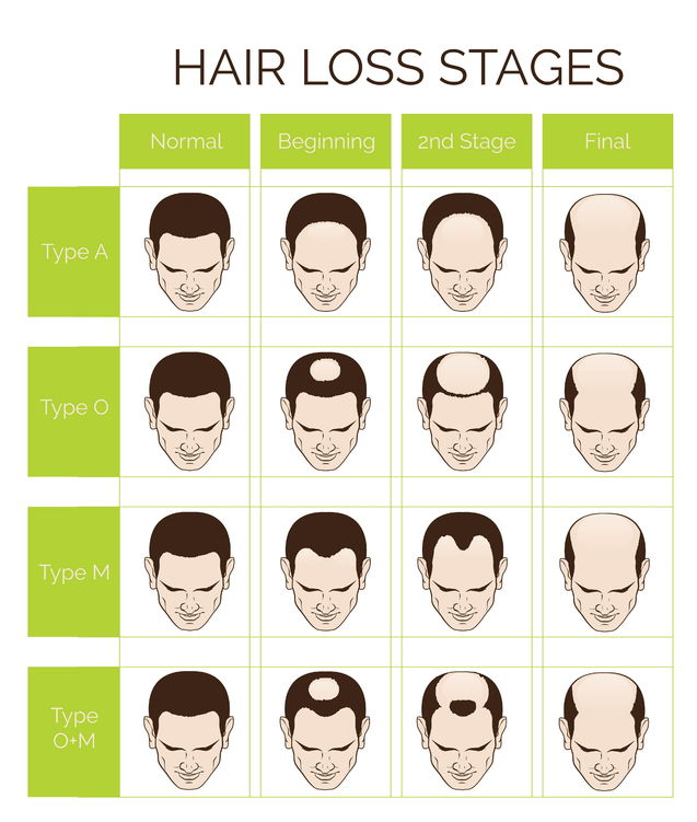Hair Loss Diagram Bournemouth clinic