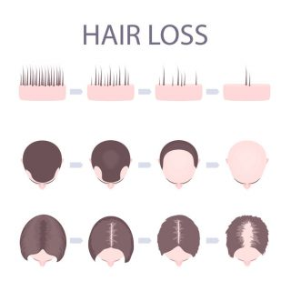 An Introduction to Hair Loss in Women