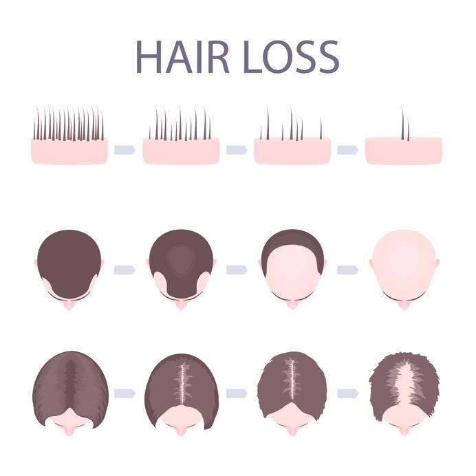 Female Pattern Baldness Template Hair Loss Clinic Dorset