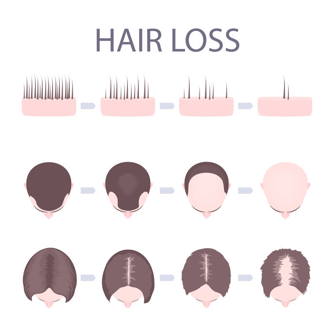 Female Pattern Baldness Template Hair Loss Clinic Dorset