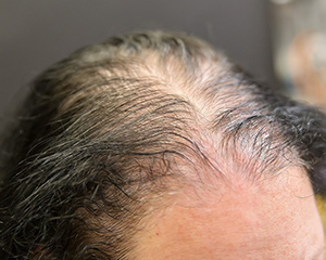 What are the early signs of alopecia?