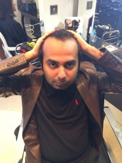 Tackling the Myths of Male Pattern Baldness