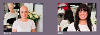 Christina's Hair Loss Story