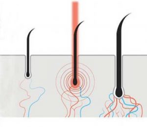 hair cuticle stimulated by heat v2 400x344