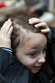 Hair Loss In Children: Tinea Capitis