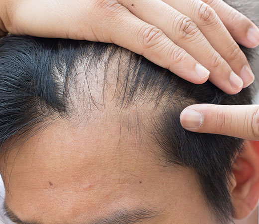 Expert advice on hair loss conditions from Simone Thomas Trichology Clinics in Dorset
